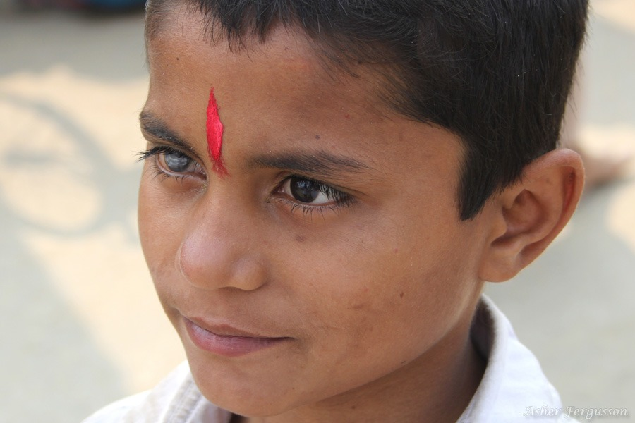 Boy with a steel colored eye