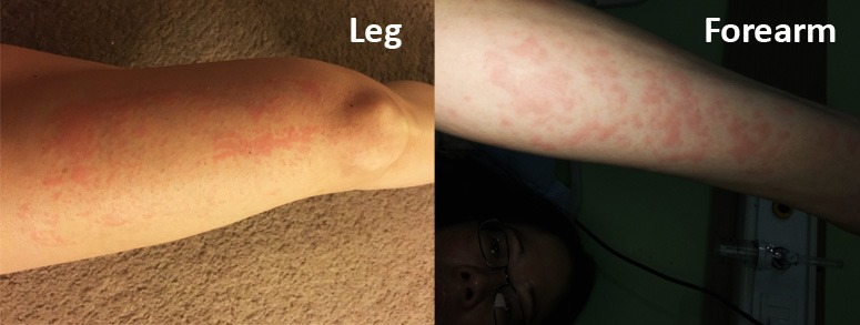 allergies-in-india-on-leg-and-forearm